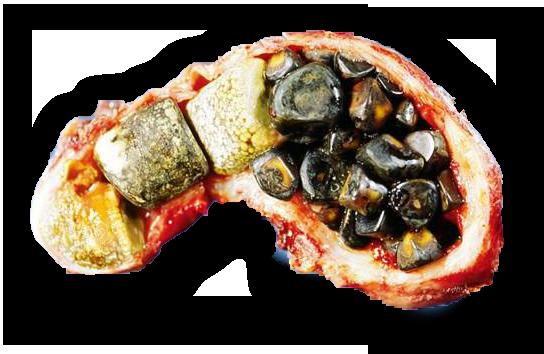 Стол при камнях в желчном пузыре